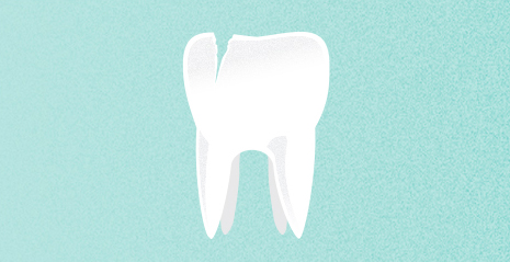 Cracked Tooth Pain Relief Tips