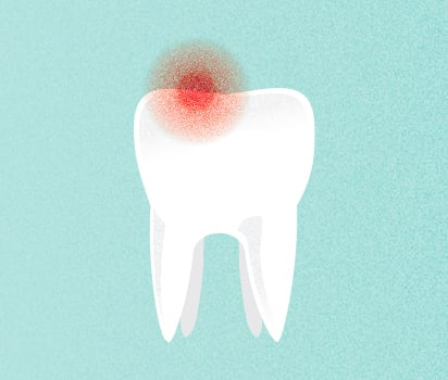 What is Tooth Pain