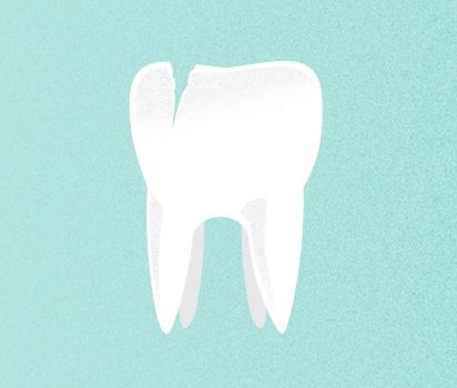 What cracked and broken teeth feel like